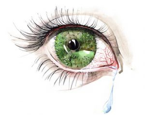 Dry Eye Treatment At Our San Diego Eye Care Clinic